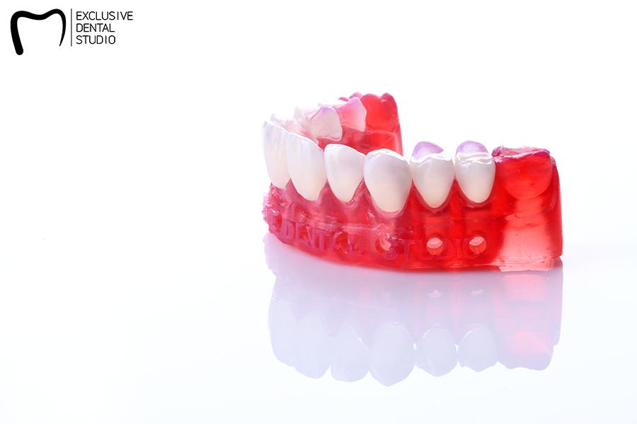 model dental