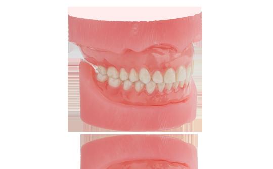 dentures5